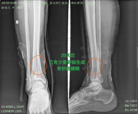 右胫骨远端骨折,40天即可进行功能锻炼